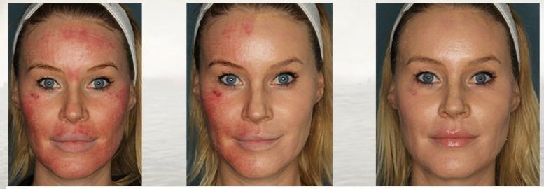 Laser behandling før og etter - Laser skin clinic Oslo